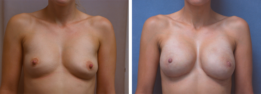 Breast Reconstruction #4