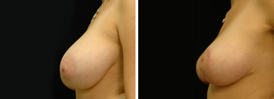 Breast Reduction #2