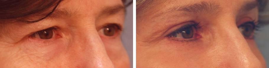Eyelid Surgery & Brow Lift #2