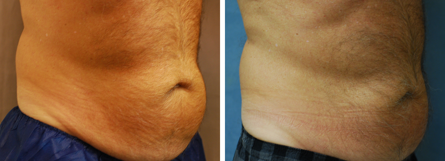 CoolSculpting #10