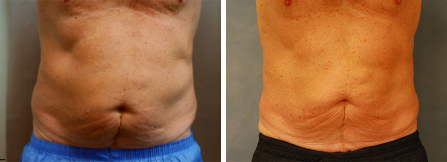 CoolSculpting #6