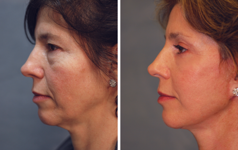 Face & Neck Lift #5