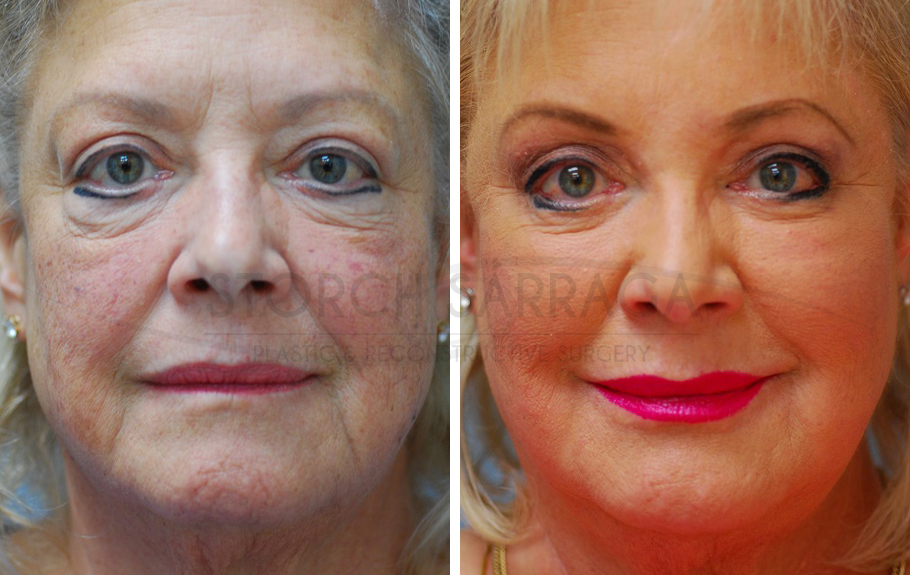 Eyelid Surgery & Laser Resurfacing #3