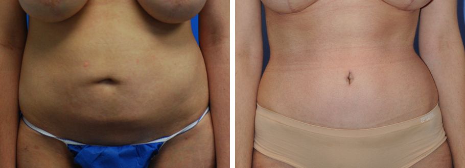 Liposuction and Tummy Tuck #2