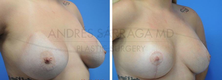 Revision of Breast Augmentation & Lift #9