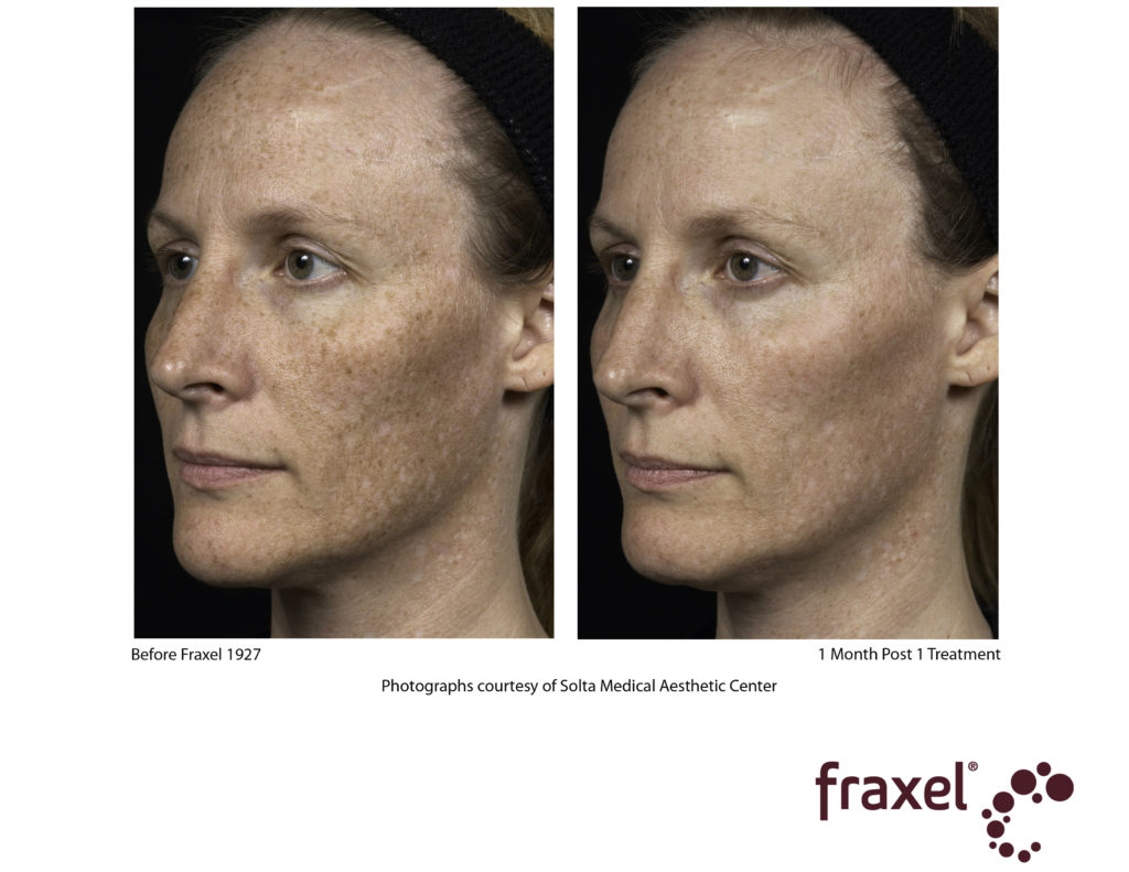 fraxel patient before and after photos