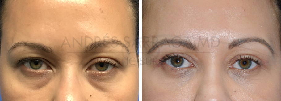 Upper and Lower Blepharoplasty with Ptosis Repair