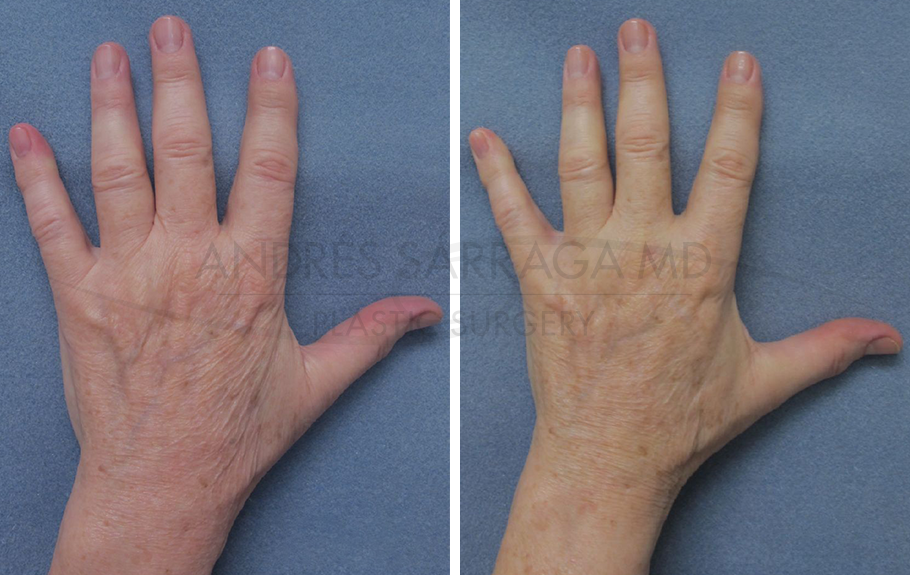 Hand Rejuvenation #1
